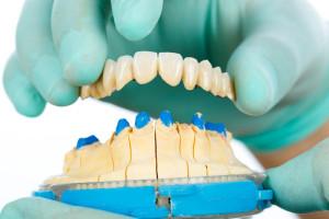 porcelanove zuby